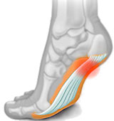 Plantar Fasciitis treatment by Dr. Farajian Huntinton Beach CA